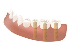 札幌市豊平区 たく歯科 埋め込み手術は3段階(ほかに2段階で終わる方法もあります)