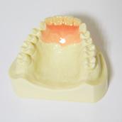 札幌市豊平区 たく歯科 スマートデンチャーの特徴