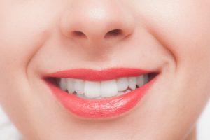 札幌市豊平区 たく歯科 ホワイトニング
