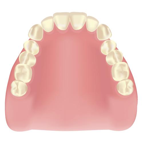 札幌市豊平区 たく歯科 金属床義歯