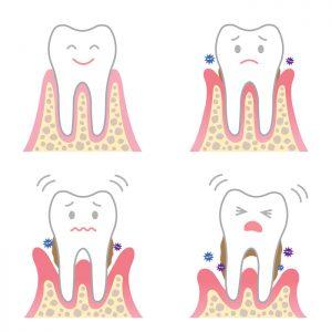 札幌市豊平区 たく歯科 歯周病治療