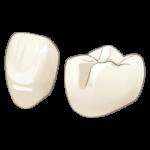 中台寿一歯科医院 歯周病治療 e-max(イーマックス)