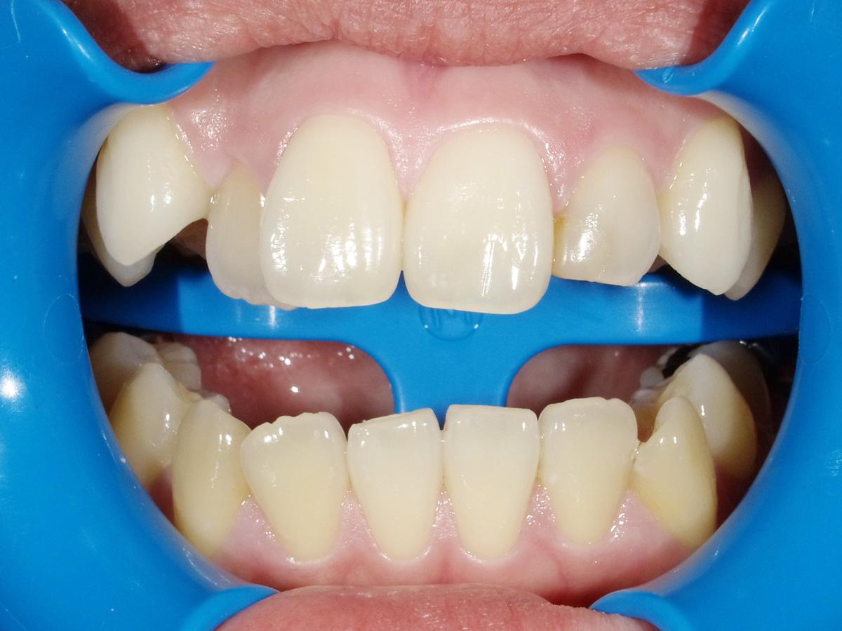 札幌市豊平区 たく歯科 ホワイトニングできる範囲はどのくらいですか?